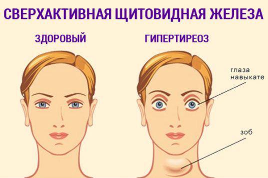 больные щитовидкой