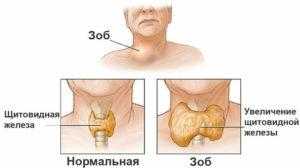 схема щитовидки