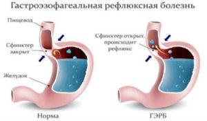 желудочная болезнь