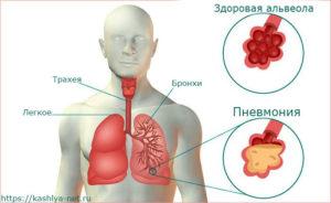 схема лёгких