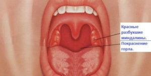 горло с ангиной