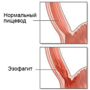 пищевод эзофангит